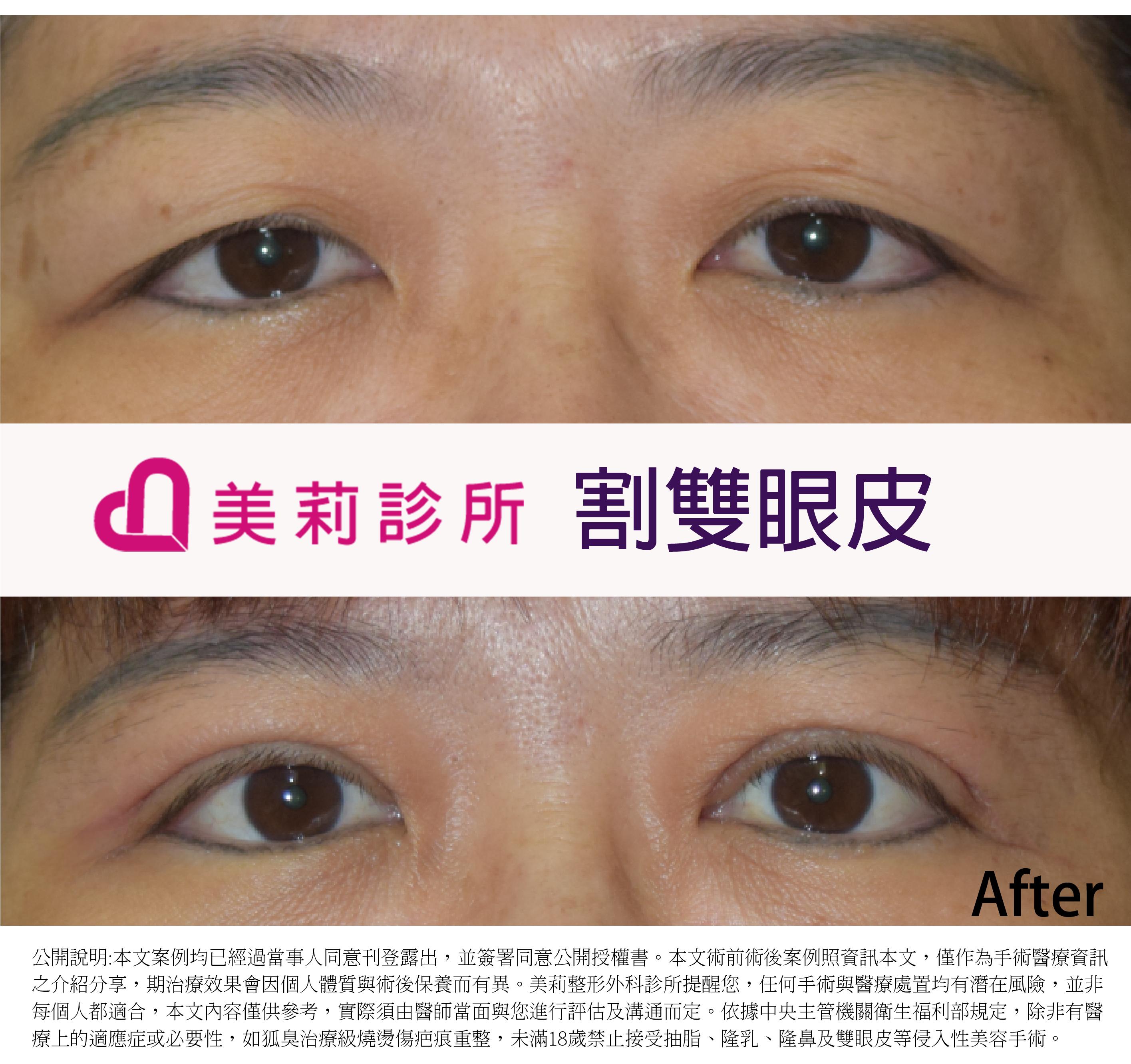 縫雙眼皮案例,羅仁傑雙眼皮,高雄醫美,高雄雙眼皮推薦,高雄割雙眼皮價格,高雄縫雙眼皮案例,縫雙眼皮腫脹,雙眼皮失敗,雙眼皮膠,雙眼皮貼