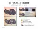 OBERRON 生物能量信息醫學診斷儀附產品-7