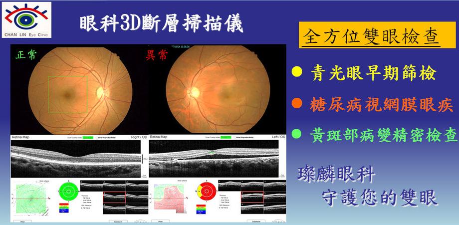 iVue眼科3D斷層掃描儀2